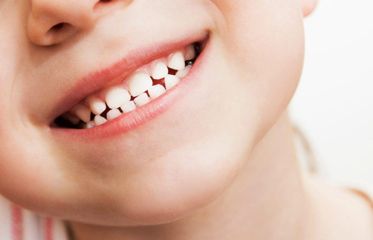 La importancia de los dientes de leche con Dental Company de Cartaya
