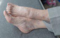 «Con Buen Pie: El cuidado del pie en las personas mayores»