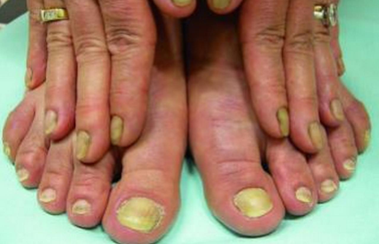 «Con Buen Pie: El Síndrome de las uñas amarillas»